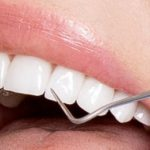 Why children experience disarranged teeth growth?